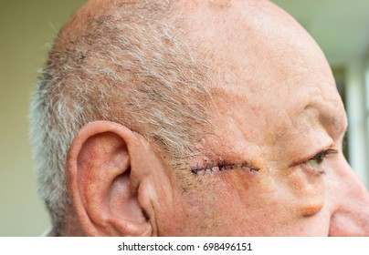 Close-up of elderly man eye with large edema of the eyelids after surgery