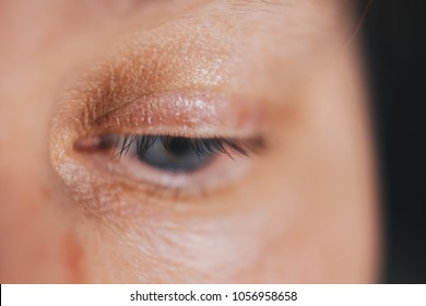closeup of the eye. eye close up. inflamed vessels on the eyes. eye allergy. Acanthamoebic keratitis. Blepharitis. Asthenopia. the eye of an elderly person. blue eyes