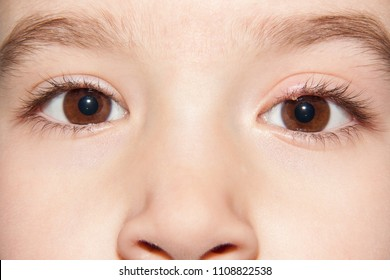 Close-up face of a child with a healthy eye and an infected purulent eye. One eye infection stye - upper eyelid inflammation.