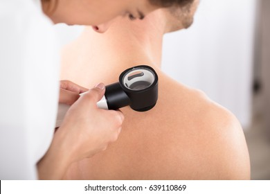 Close-up Of A Female Doctor Examining Skin Of Patient With Dermatoscope