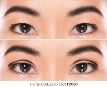 Close-up of female eyes after East Asian blepharoplasty or double eyelid surgery