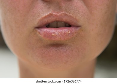 Close-up of female lips suffering from herpes disease