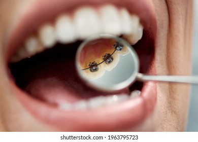 Close-up of female patient having check-up of dental braces on the back side of her teeth at dental clinic.