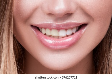 Close-up Female Teeth Whitening Before and After the Procedure, Big Lips Mouth Open, straight Beautiful Teeth. Brush your Teeth. Beautiful Smile for Woman's Face.  White  smooth Natural Teeth