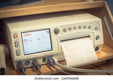 Close-up fetal monitor or non stress test printing baby heart beats, electrocardiograph and mother uterine contraction. Labor and delivery room at hospital