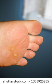 Closeup of foot with an infected wart placed under toes. Foot wart. Foot bottom pathology: verruca, wart, papilloma virus.