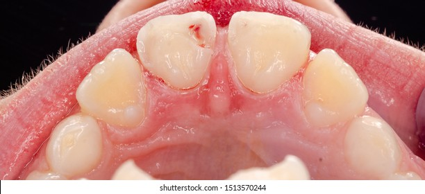 closeup of fractured incisors by a scooter accident, open pulp chamber