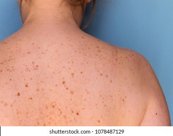 Closeup of freckles on back of a woman. Pigmentation and lot of birthmarks. Skin problems