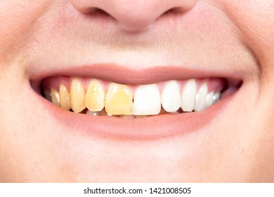 A closeup and front shot on the mouth of a Caucasian person, bef