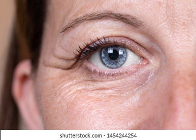 A closeup and front view on the eye area of a lady in her 40s. Heavy crow's feet, also known as laughter lines, are seen around the eye. Skin fatigue.