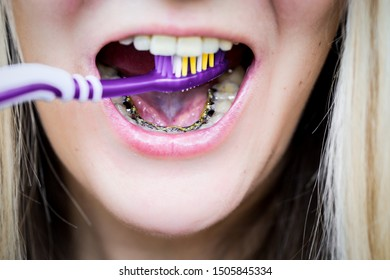 close-up, girl brushing her teeth with invisible internal lingual braces, orthodontic treatment, hygienic toothbrush care