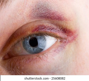 close-up haematoma on eye