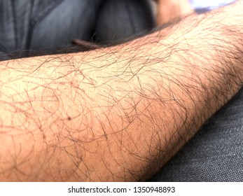 Closeup hair on arm with red skin