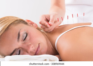 Closeup of hand performing acupuncture therapy on customer's back at salon