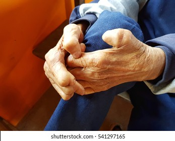 closeup hands of asian old man suffering from leprosy, Thailand