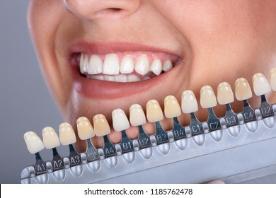 Close-up Of A Happy Woman Matching Shade Of The Implant Teeth