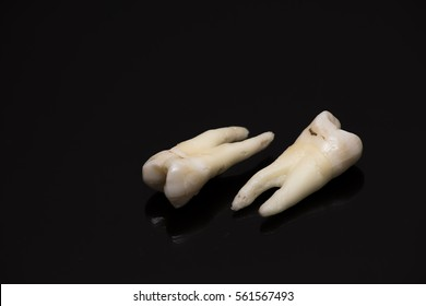 close-up of human teeth on a black background