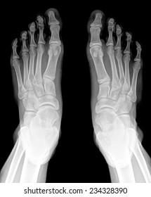closeup image of classic xray image of feet