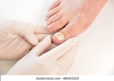 Closeup image of podologist checking the left foot toe nail suffering from fungus infection. horizontal studio picture on white background.