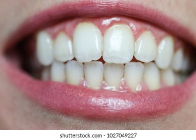 A closeup image of a woman's mouth, including her teeth and lips.