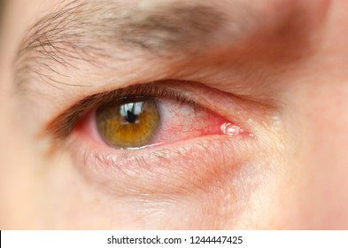 Closeup irritated infected red bloodshot eyes, conjunctivitis.