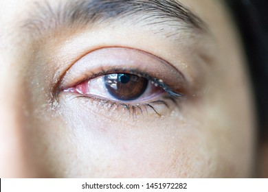 Closeup  of irritated red eye of a patient with human conjunctivitis or infected red bloodshot eye