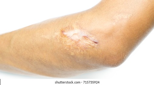Closeup keloid scar on elbow of Asian man skin after motorcycle accident  on white background with copy space.