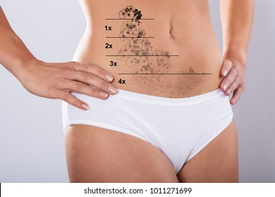 Close-up Of A Laser Tattoo Removal On Woman's Stomach