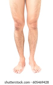 Closeup legs men skin and hairy with white background, health care and medical concept