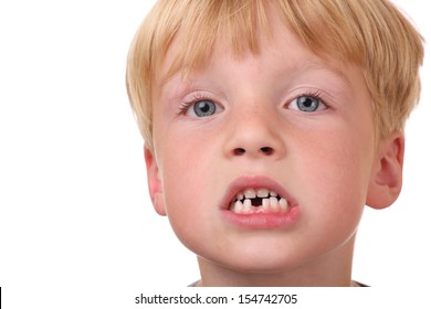 Closeup of little boy with missing teeth