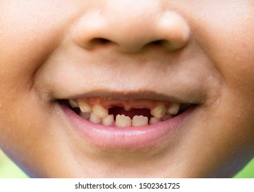 Closeup: The little boy smiled without a front tooth because of tooth caries.
