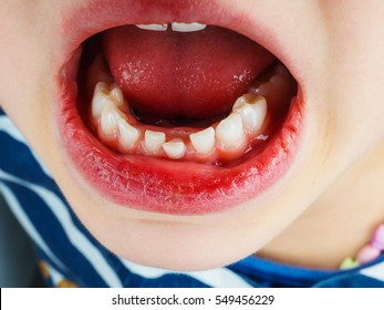 Closeup of lose tooth in a little girls mouth