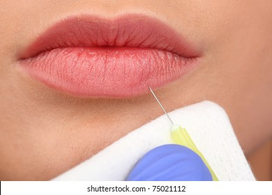 Closeup of lovely girl mouth getting injection on her lips