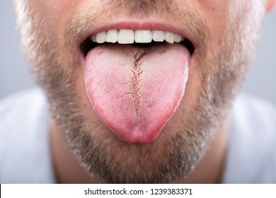 Close-up Of A Man Showing His Tongue