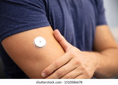 Close-up Of A Man Testing Glucose Level With A Continuous Glucose Monitor On His Arm