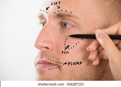 Close-up Of A Man's Face With Correction Line Drawn By Person's Hand For Plastic Surgery
