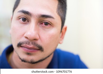 Close-up man's face with red eye conjunctivitis or injured red eye.