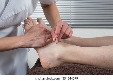 Close-up of a Man's feet receiving acupuncture treatment