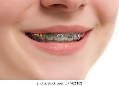 Closeup multicolored Braces on Teeth. Beautiful Female Smile with Self-ligating Braces. Orthodontic Treatment.