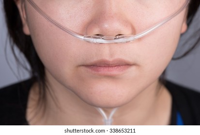 Closeup of nasal cannula for oxygen delivery on a woman patient