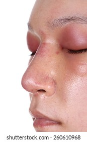 close-up nose and eye swelll after nose job plastic surgery