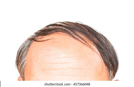 Closeup old man serious hair loss and grey hair problem with white background