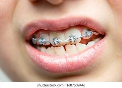 Closeup on teeth with orthodontic brackets. Dental health care.