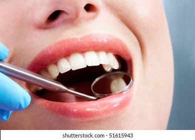 Close-up of open mouth during oral checkup at the dentist?s