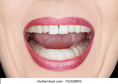 Closeup of an open woman's mouth with plastic teeth guard to stop wear due to grinding at night, caused by excessive tension