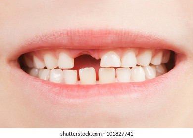 Closeup of the opened mouth of a child with a tooth space