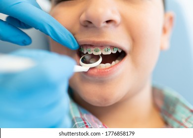Closeup of orthodontist examining boy wearing braces with dental mirror