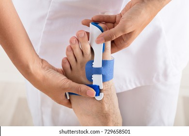Close-up Of A Orthopedist Fixing Plaster On Injured Man's Foot In Clinic