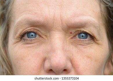 Close-up of pale blue eyes and nose of middle age woman with haemangioma. Full frame detailed portrait