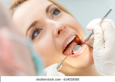 Close-up partial view of beautiful middle aged woman at dental check up